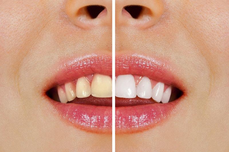 歯を削らずに白く美しくします