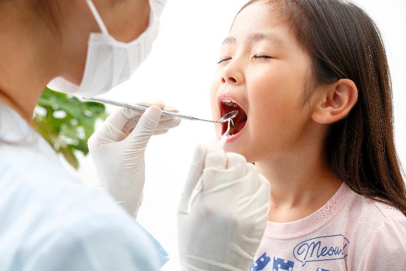 乳歯であっても虫歯治療は必要です