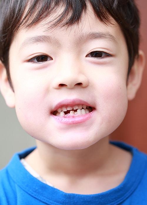 歯並びが悪いと病気リスクが高くなります