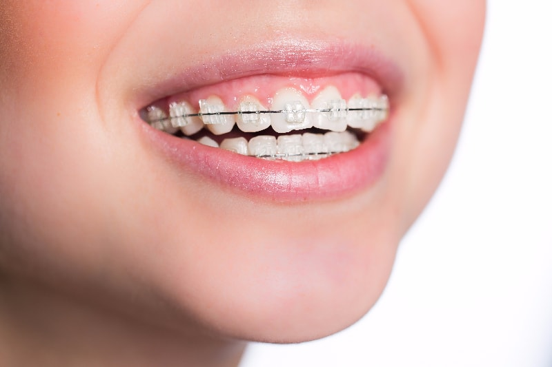 理想的な歯並びのための土台を作ります