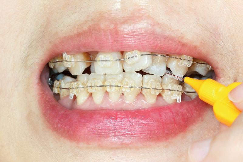 本格的な矯正装置を使って歯を動かします
